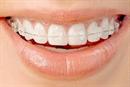 Nejat Orthodontics